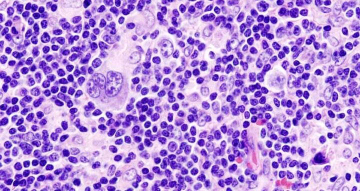 Why Hodgkin's lymphoma cells grow uncontrollably   MDC Berlin