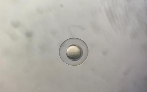 A few hours old zebrafish egg under the microscope, in the laboratory of Daniela Panáková