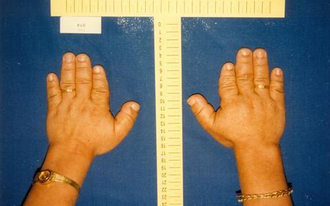 Brachydaktylie Category:Brachydactyly