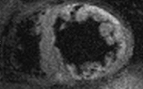 Fig. 1. Cardiac MRI of a Patient with LVNC