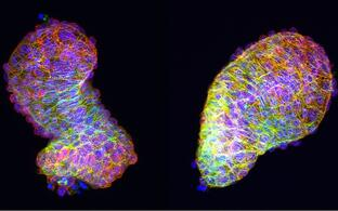 Zebrafish Heart Looping
