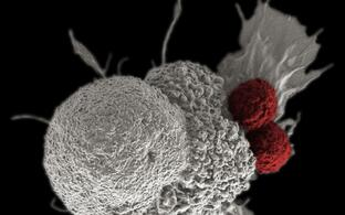 T-cells (highlighted red) attacking a cancer cell